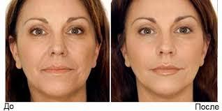 Лазерное омоложение кожи – отличный способ вернуть молодость